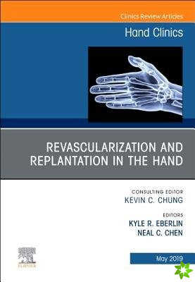 Revascularization and Replantation in the Hand, An Issue of Hand Clinics