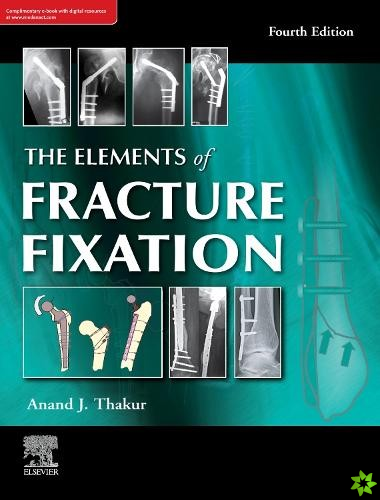elements of fracture fixation, 4e