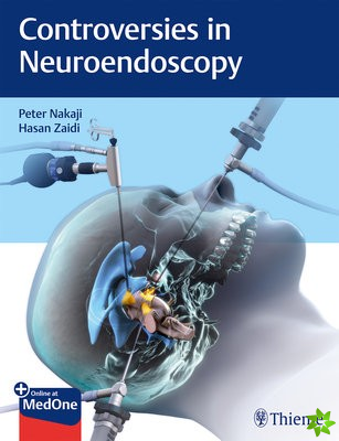 Controversies in Neuroendoscopy